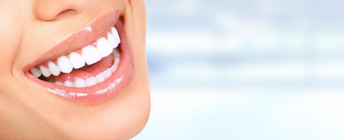 Zahnästhetik Weißenhorn - schöne weiße Zähne für ein strahlendes Lachen