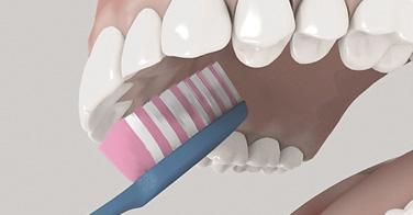 Richtiges Zähneputzen - Tipps von Dr. Janschitz