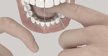 Wie benutze ich Zahnseide richtig - Zahnarzt Weißenhorn Dr. Janschitz