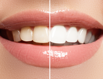 Zahnästhetik Weißenhorn - ästhetische Zahnheilkunde bei Dr. Janschitz
