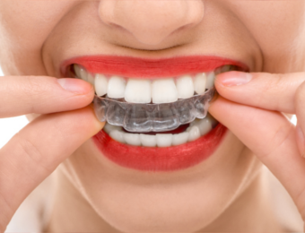 Kieferorthopädie Weißenhorn - Zahnregulierung bei Dr. Janschitz